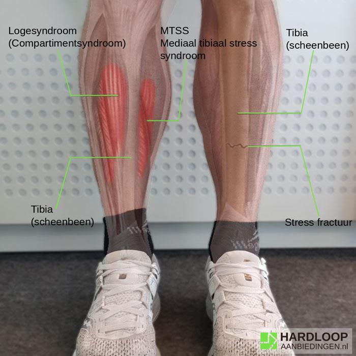 Overzicht shin splints | Hardloopaanbiedingen.nl
