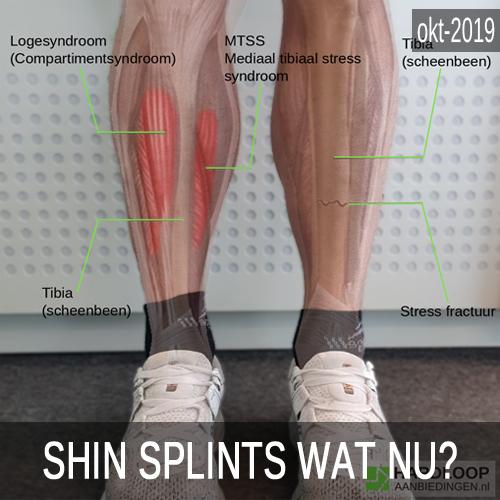Shin splints wat nu?