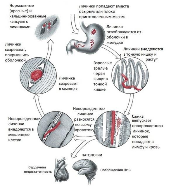 Рис. 6. Развитие трихинеллы в организме человека