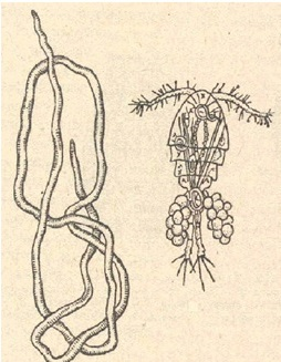 Рис. 9. Ришта: слева – взрослая самка, справа – личинка в циклопе (по Павловскому)